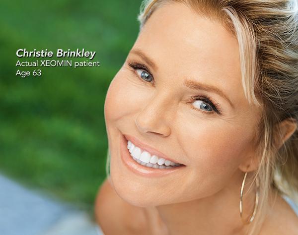 Christie Brinkley - Actual XEOMIN Patient